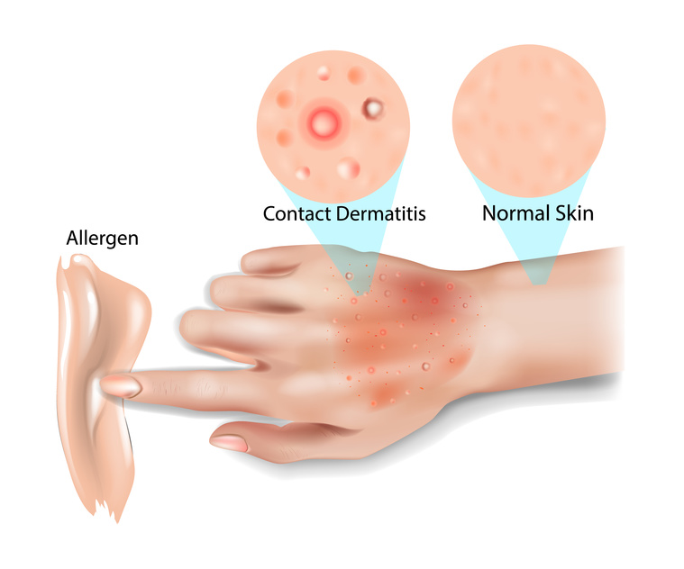 eczema allergique de contact