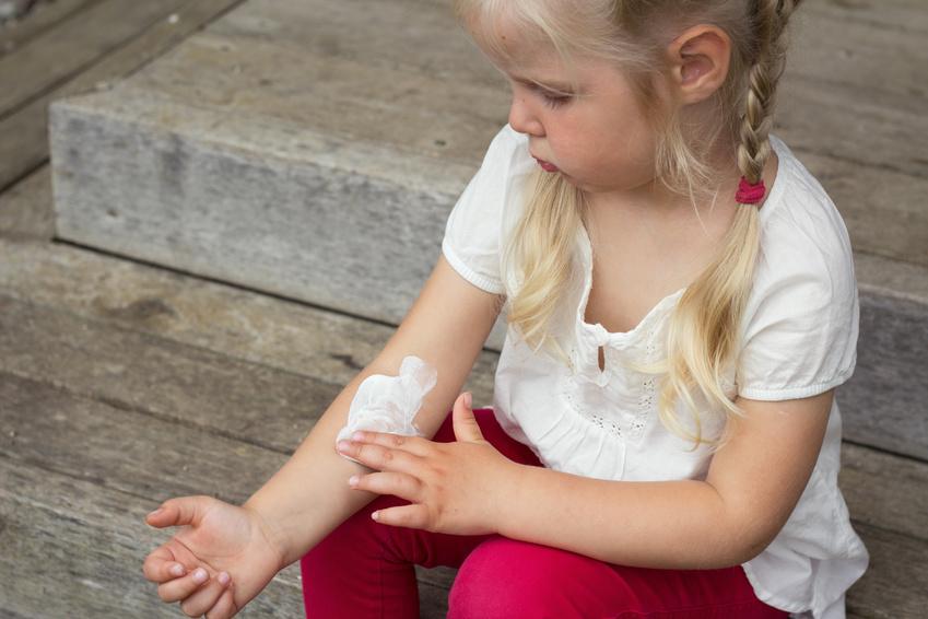 eczema enfant