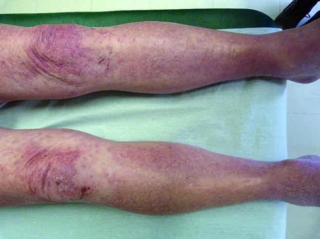 eruption eczematiforme diffuse