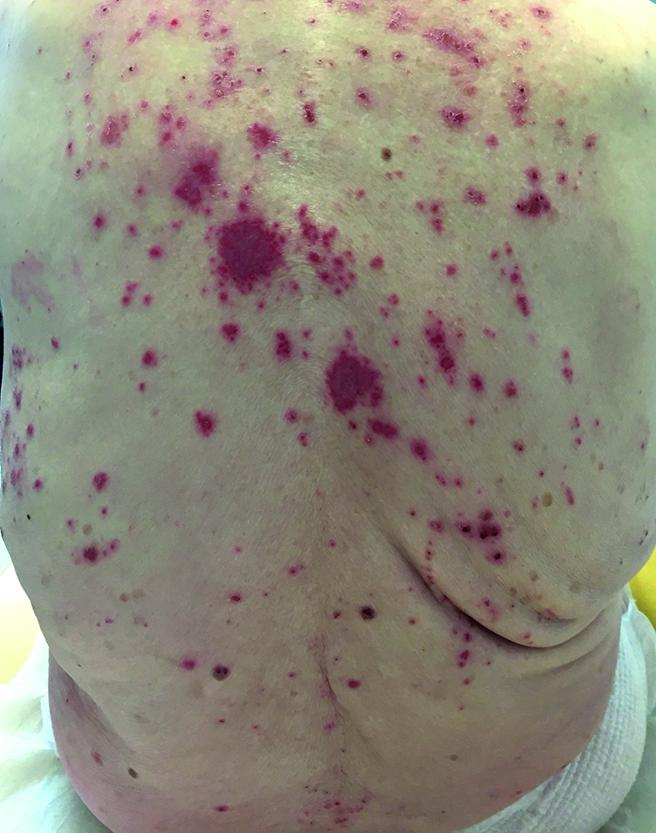eruption eczematiforme secondaire