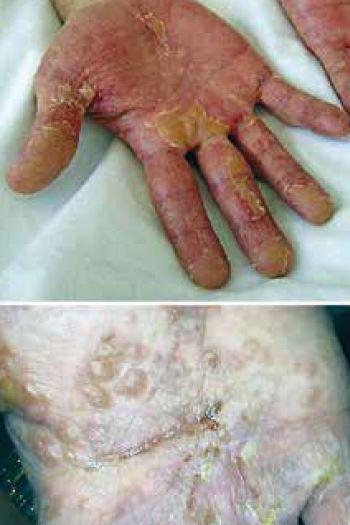 eczema des mains