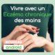 vivre avec un eczema des mains